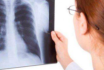 Аналізи та рентген стануть безкоштовними