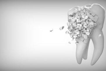Кому потрібна художня реставрація зубів