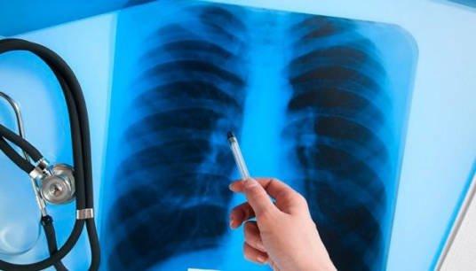 Тест на туберкульоз можна зробити в інтернеті