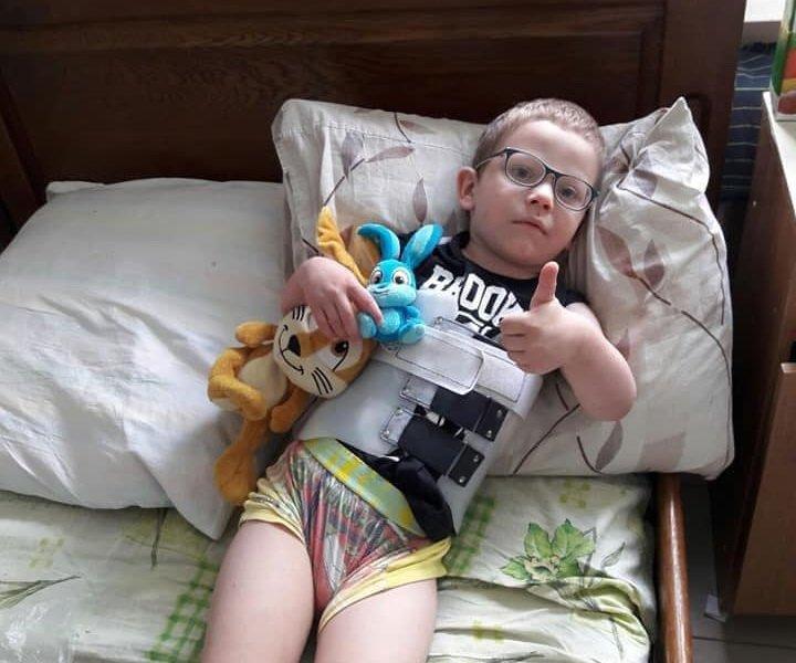 Маленький тернополянин, який росте без батьків, потребує грошей на операцію