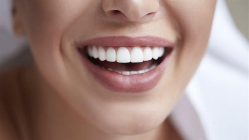 Нужно ли делать отбеливание зубов на самом деле?